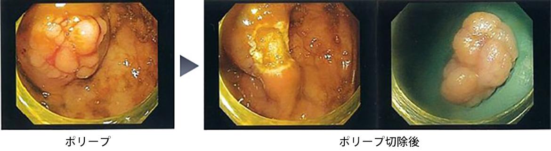 視 検査 内 切除 ポリープ 後 食事 鏡 大腸